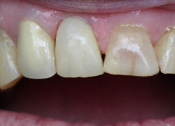 Teeth after with white filings