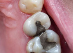Teeth with silver filings
